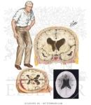 normal-pressure-hydrocephalus triad gait incontinence dementia من تحت لفوق1