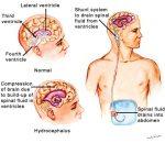 normal-pressure-hydrocephalus triad gait incontinence dementia من تحت لفوق